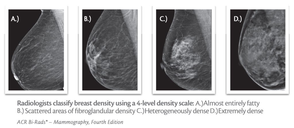 Breast Density Samples